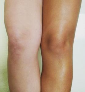 Bruine benen dankzij de spray-tan bij DIO Amber, Beauty & More in Leidschendam